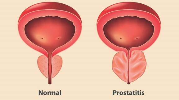normal prostata und prostatitis